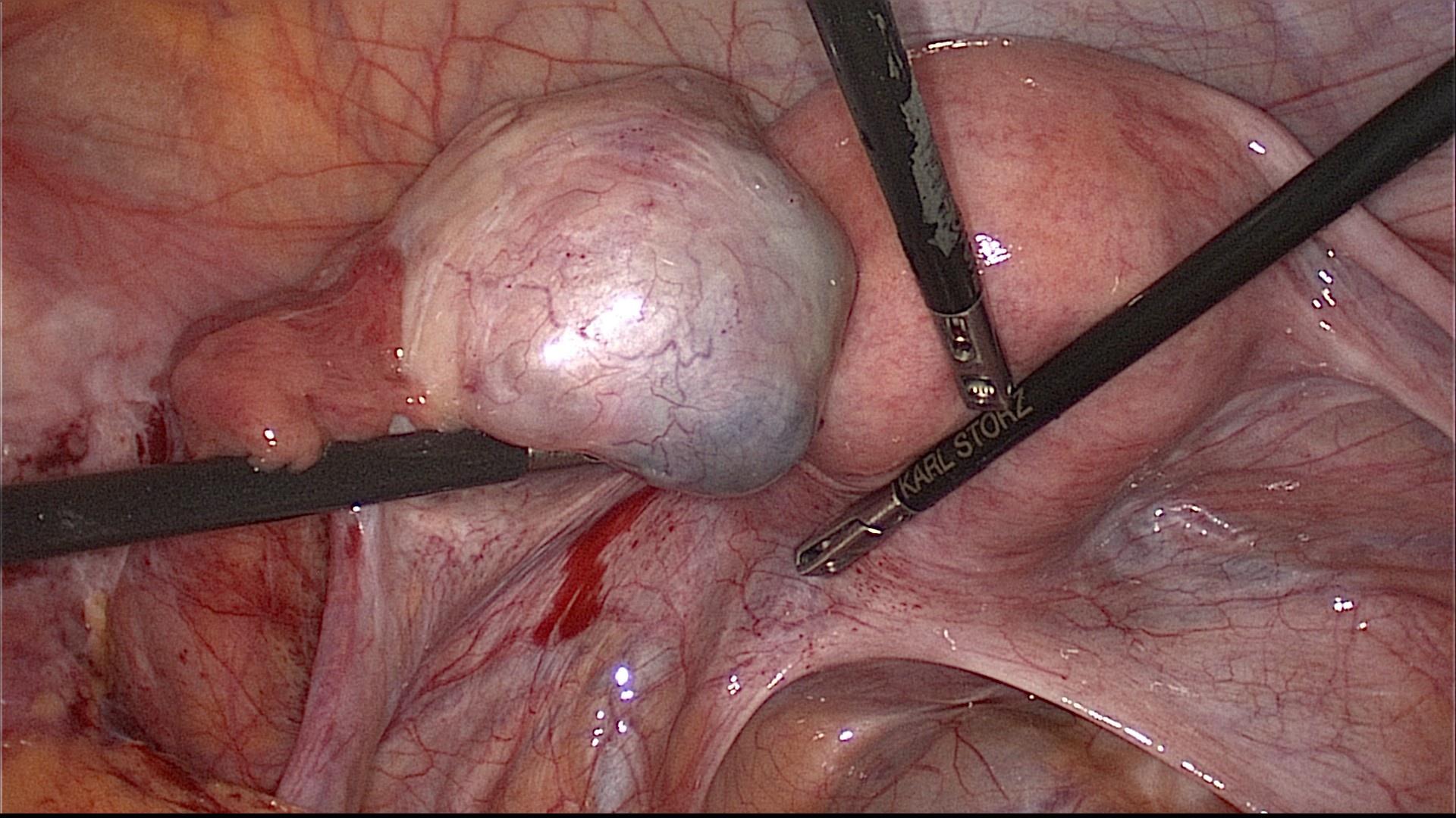 болит эндометриоидная киста