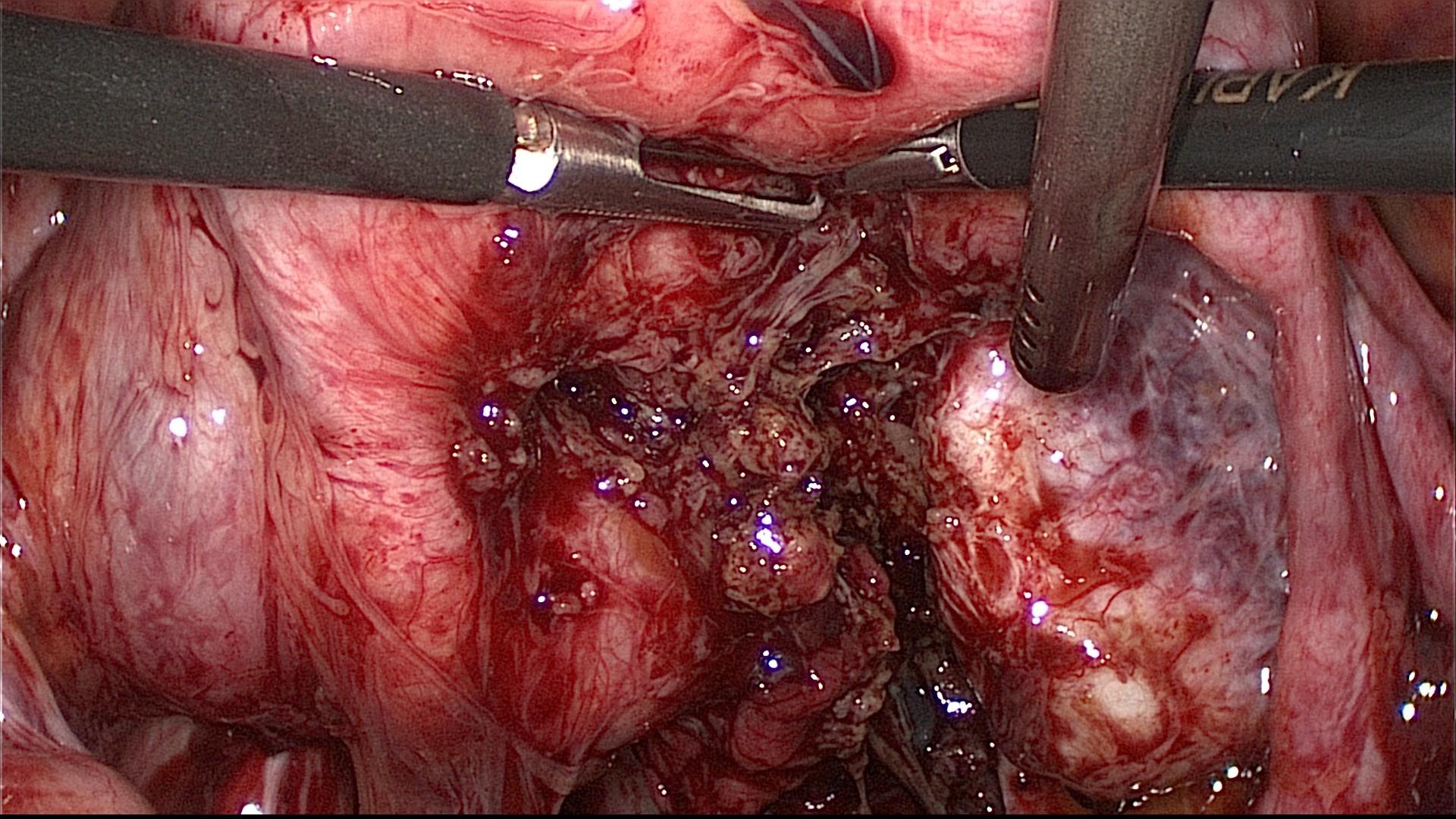 Крестцово маточные связки эндометриоз отзывы